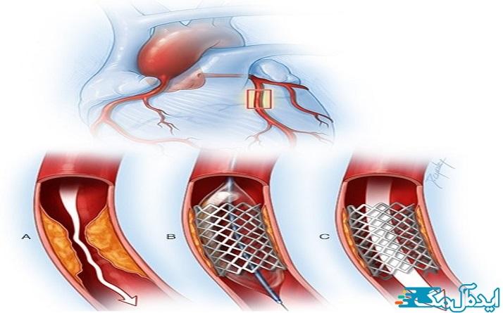 این بیماری، بیماری کرونر قلب (CHD) نیز نامیده میشود