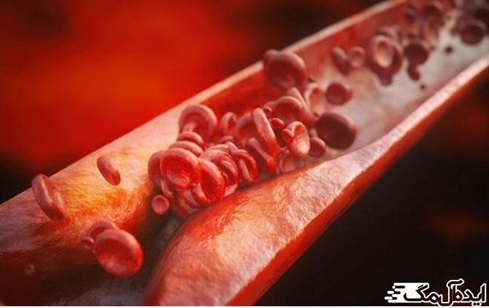 رسوبات حاوی کلسترول (پلاکها) در عروق کرونر و التهاب معمولاً مقصر بیماری عروق کرونر است