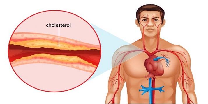 بیماری عروق کرونر هنگامی ایجاد میشود که رگهای خونی اصلی که خون قلب شما را تأمین میکنند آسیب دیده یا بیمار شوند