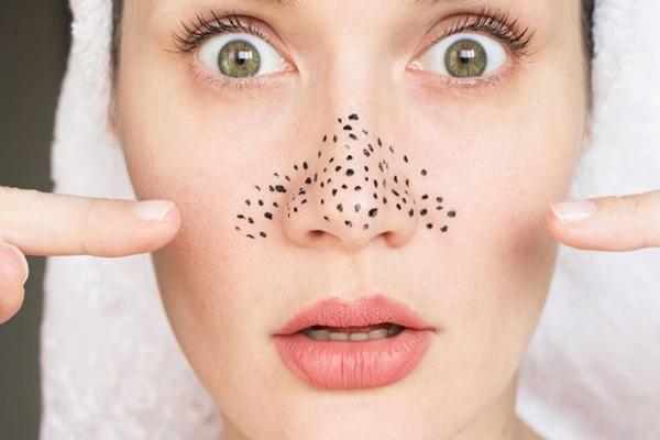 درمان جوش سر سیاه در خانه