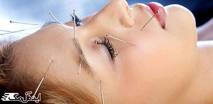 طب سوزنی برای تمامی مشکلات چشمی