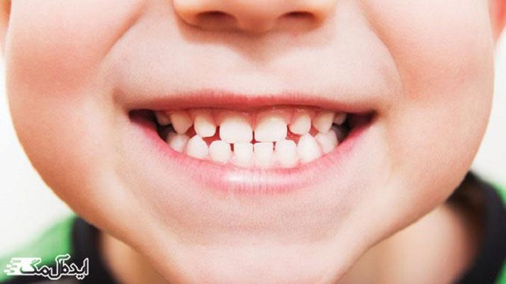 کاهش درد دندان کودک