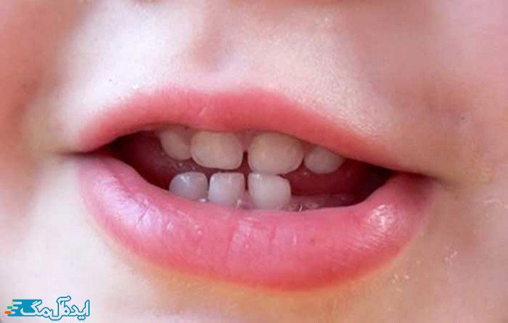 روش های مراقبتی از دندان کودکان