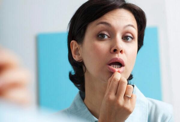 12 روش خانگی درمان آفت دهان
