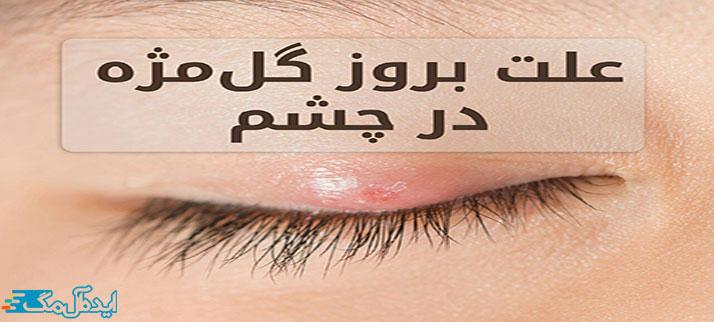 علت بروز گل مژه در چشم