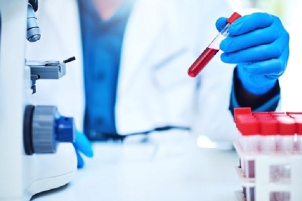 rbc در آزمایش خون چیست؟
