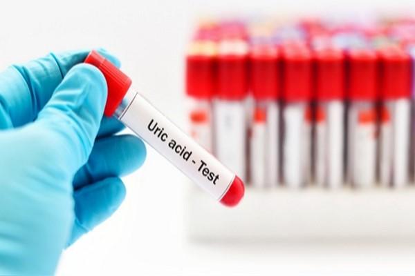 uric acid در آزمایش خون چیست ؟ اندازه گیری اسید اوریک خون
