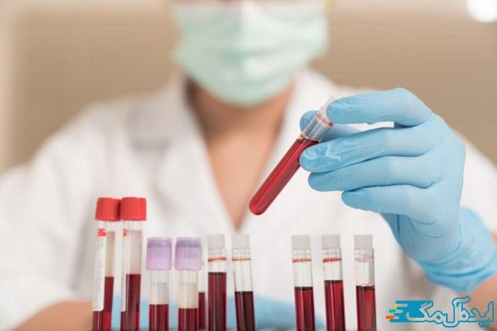 اندازه گیری اسید اوریک خون