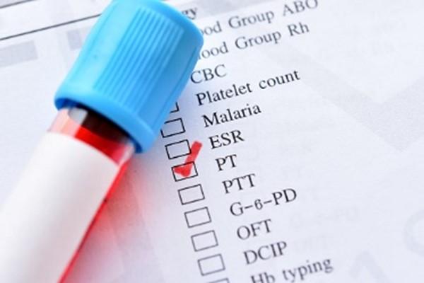 pt در آزمایش خون چیست ؟