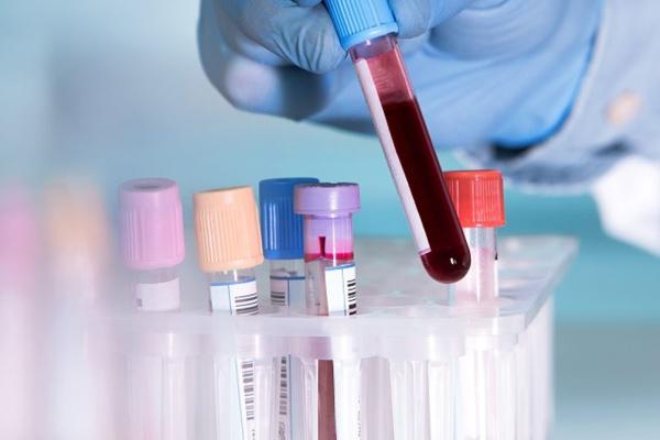 RDW در آزمایش خون