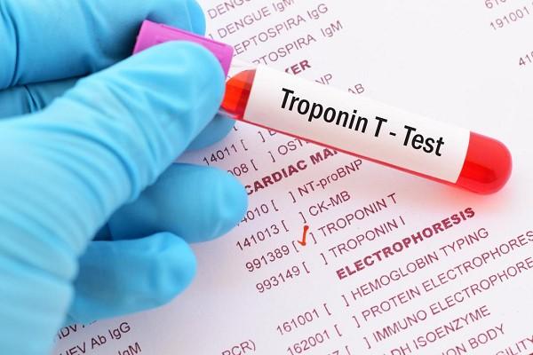 ctni در آزمایش خون | تست تروپونین چیست ؟