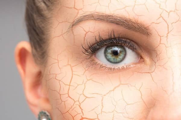 علت پوسته پوسته شدن پوست صورت چرب