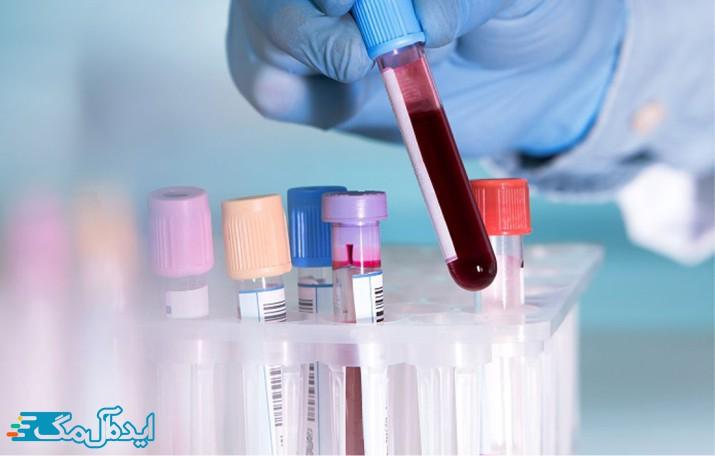 فاکتور pt در برگه آزمایش خون