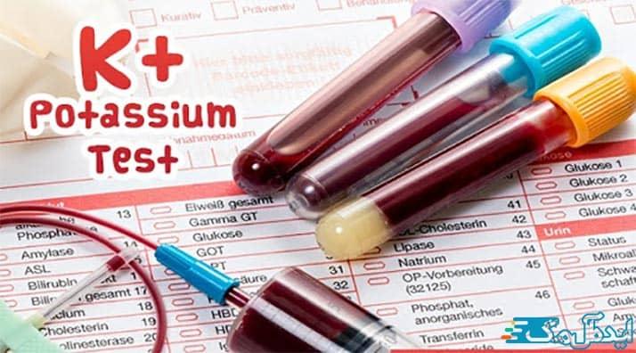 k+ در آزمایش خون