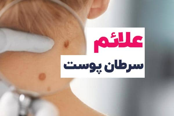 آشنایی با مهمترین علائم سطان پوست