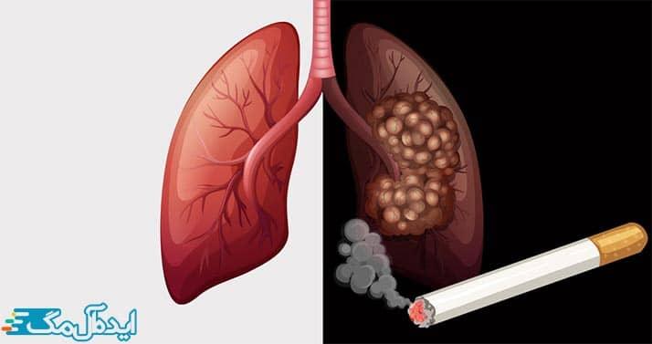 رابطه سیگار و سرطان ریه