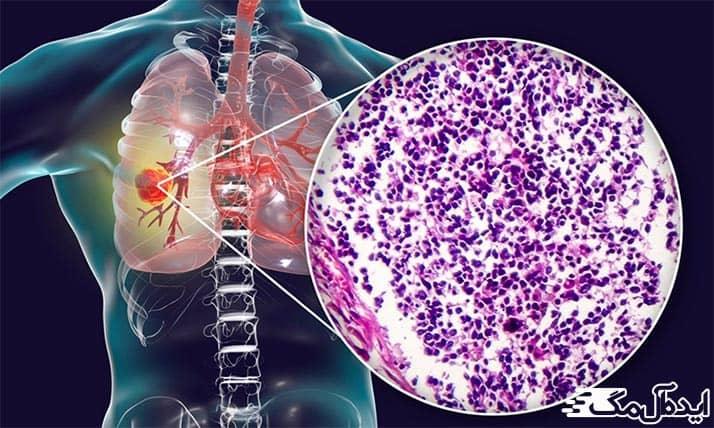 سرطان سلولهای کوچک ریه
