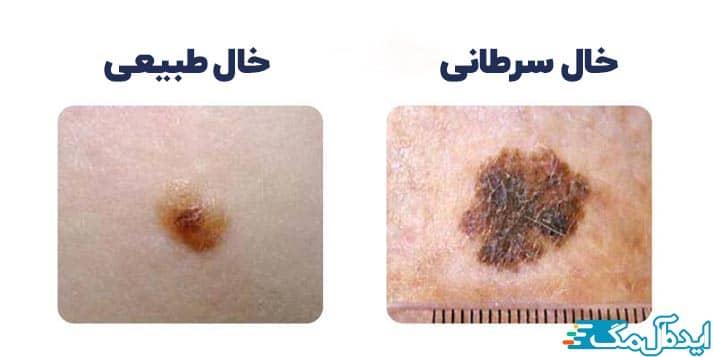 تفاوت های خال های طبیعی و سرطانی