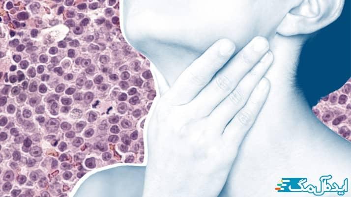 انواع مختلف سرطان خون
