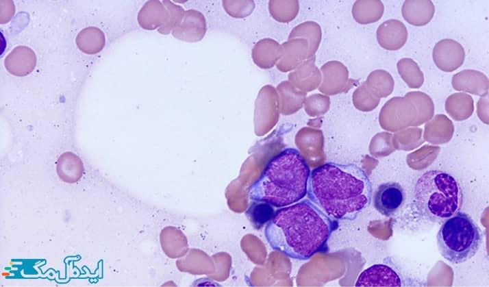 سرطان خون مزمن