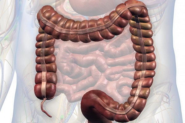 شایعترین علائم سرطان روده بزرگ و کوچک