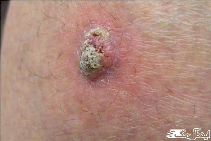 سرطان سلول های سنگفرشی