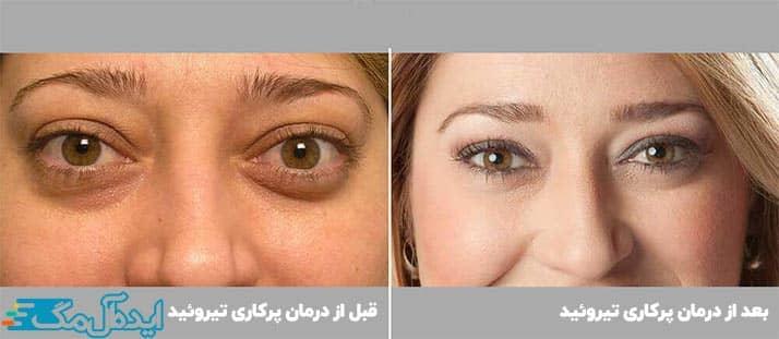 درمان مشکلات چشمی بیماری گریوز