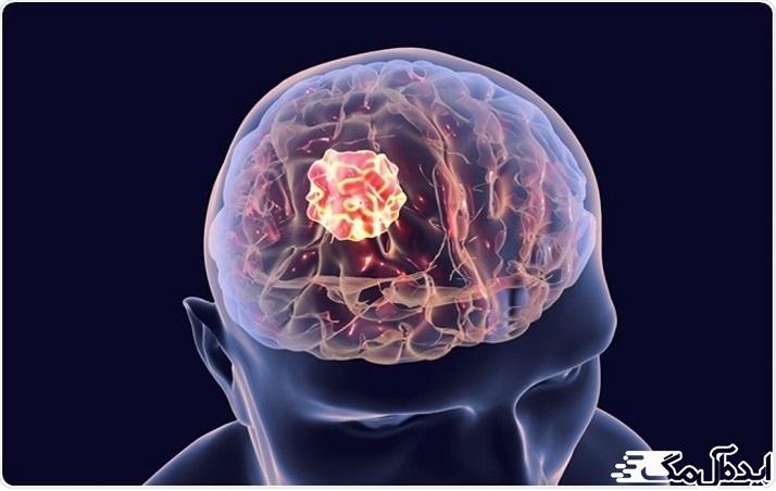 علائم پنهان تومور مغزی