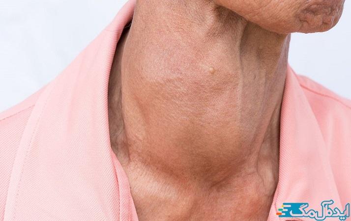 شایعترین علائم پرکاری تیروئید در مردان خستگی، تعریق، بی قراری، تغییر اشتها، مشکل در تمرکز و کاهش وزن است.
