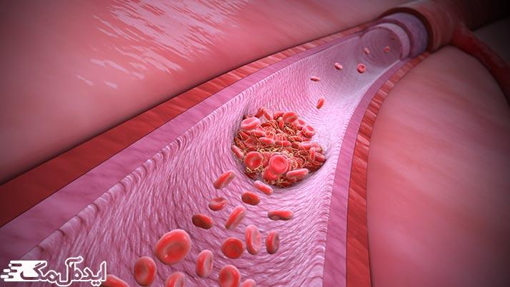 تعریف Anti Cardiolipin