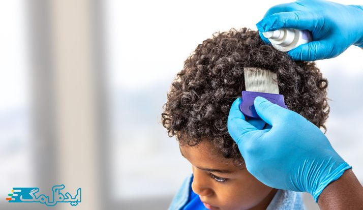 روش های درمان شپش سر