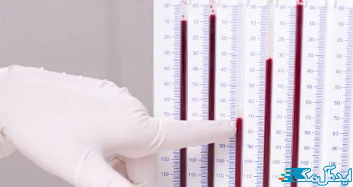 آزمایش سرعت رسوب گلبولهای قرمز خون