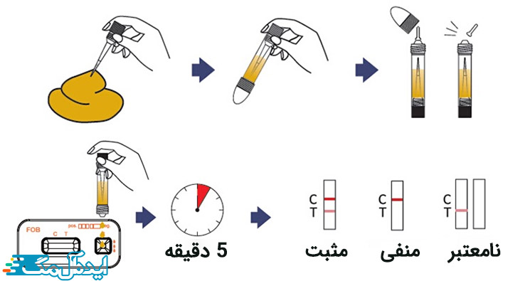 نحوه انجام آزمایش ایمونوشیمیایی مدفوع