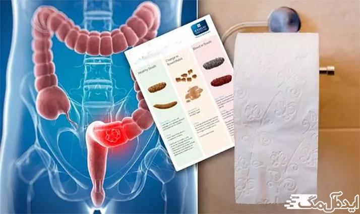 آزمایش OB یا آزمایش خون مخفی در مدفوع