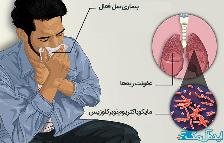بیماری سل فعال