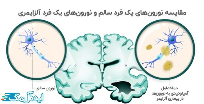 عوامل آمیلوئیدی و تخریب نورون ها