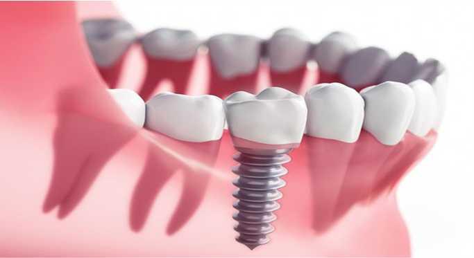 پیش از ایمپلنت دندان بخوانید